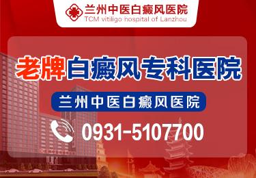 日常注意哪些能防止白斑扩散 甘肃火车站白癜风医院